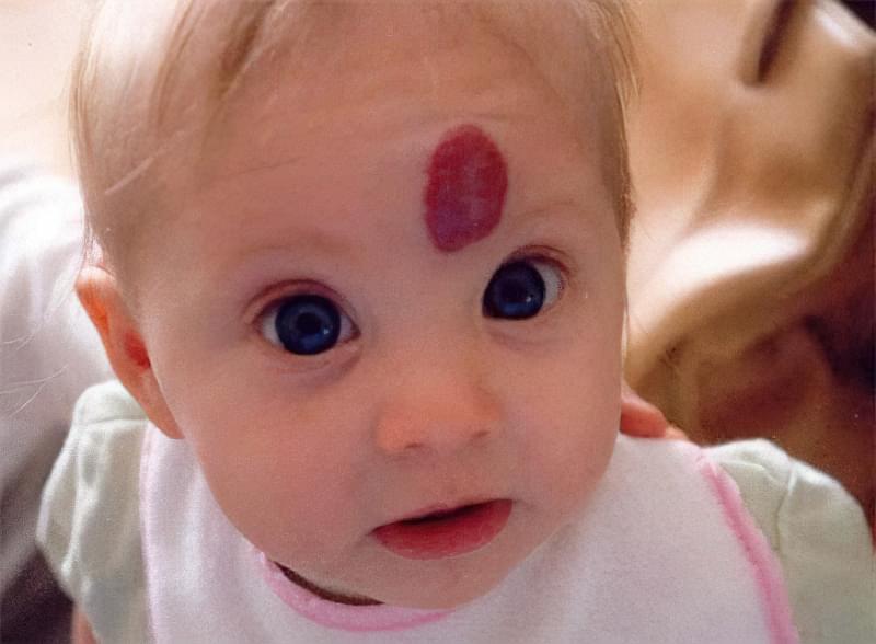 Гемангіома у новонароджених: фото, причини виникнення, лікування 1