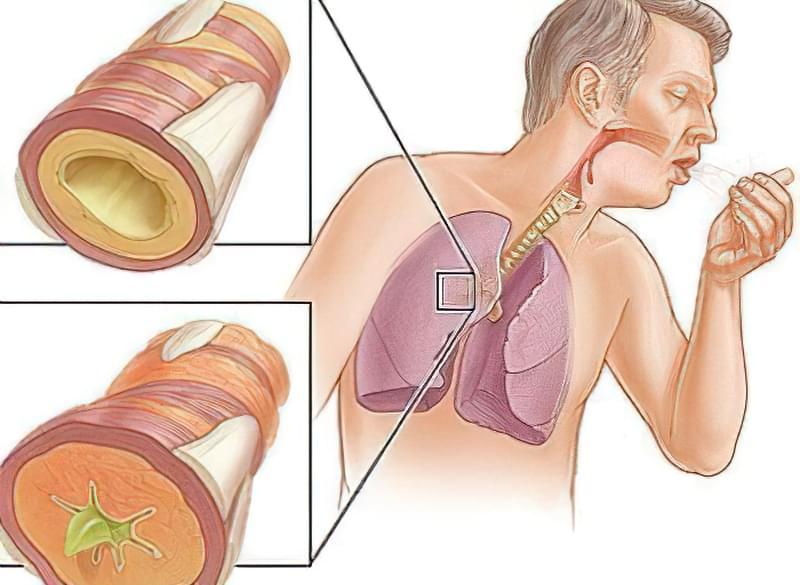 Бронхіальна астма у дорослих: симптоми, лікування 1