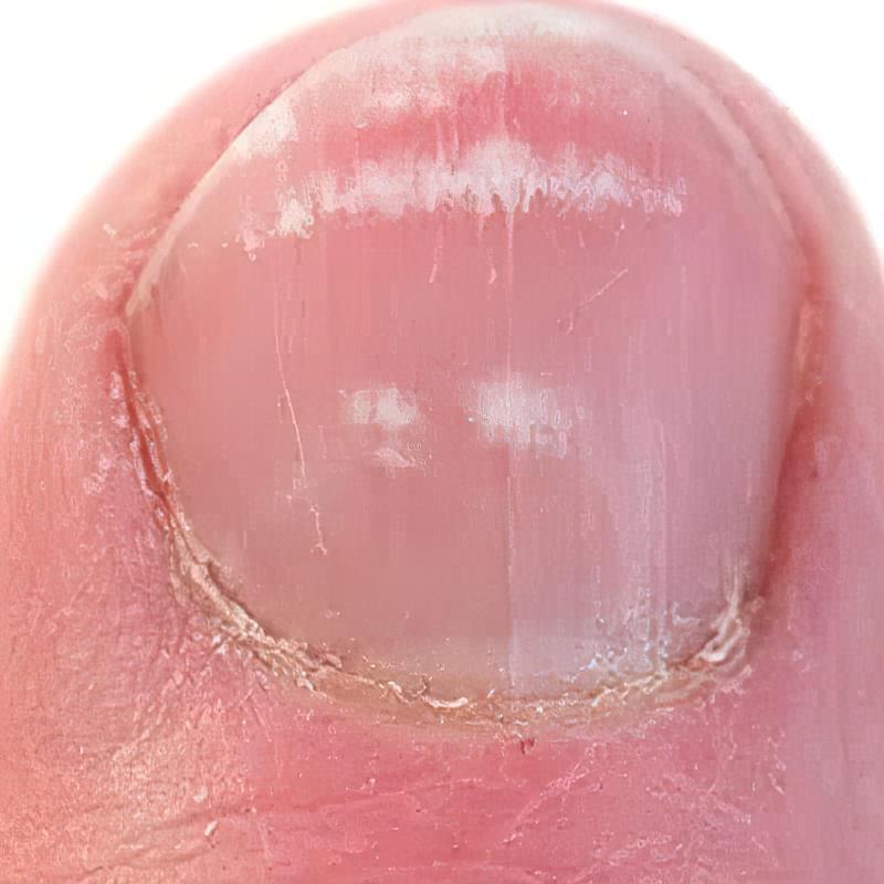 Грибок нігтів на руках на початковій стадії