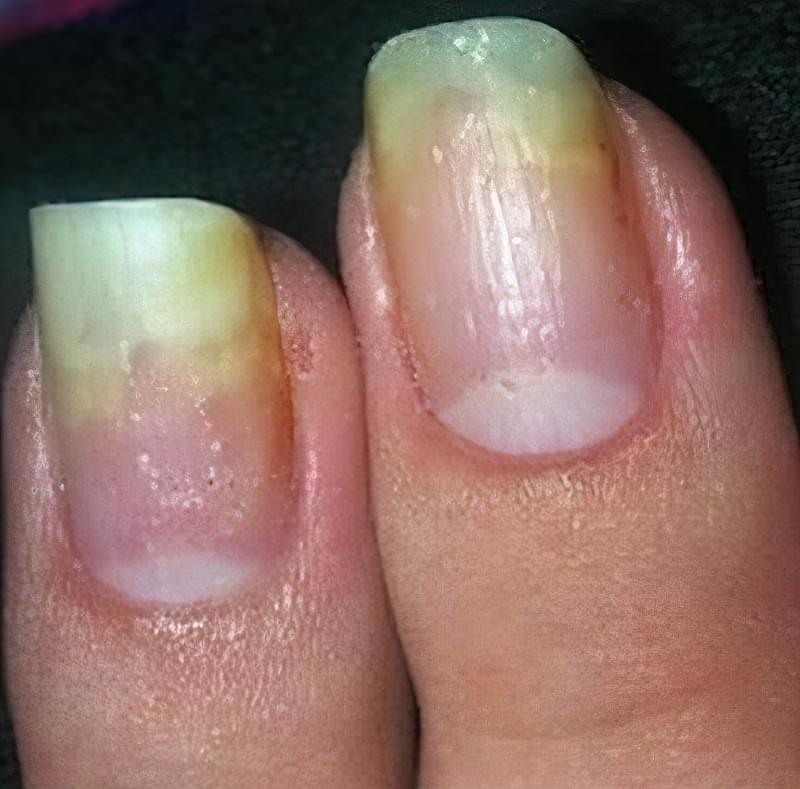 Грибок нігтів на руках: фото початкової стадії, лікування 2