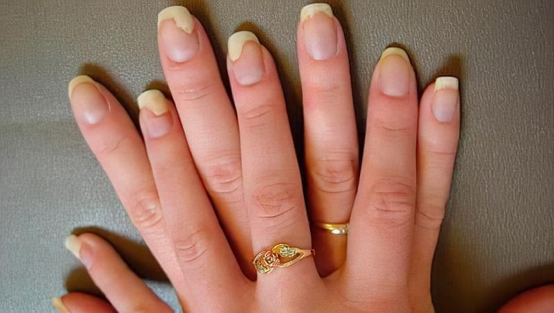 Грибок нігтів на руках: фото початкової стадії, лікування 1