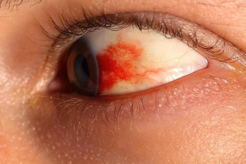 Крововилив в око: причини і лікування 1