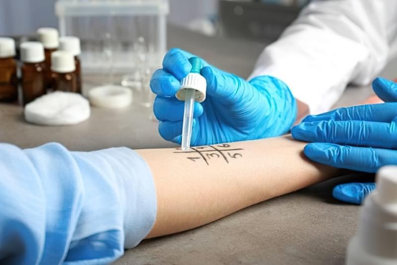 Алергія на латекс: симптоми, лікування 2