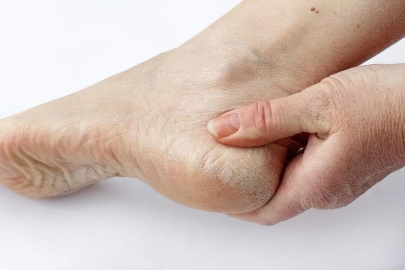 Діабетична дермопатія та інші види враження шкіри при діабеті 1