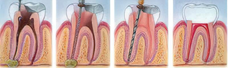 Лікування гранулеми зуба 2