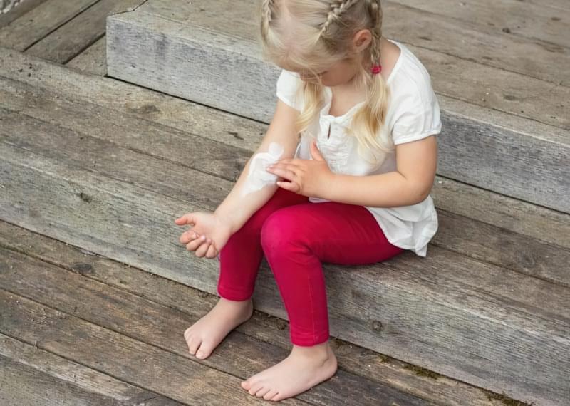 Лікування укусів комарів і мошки у дітей 1