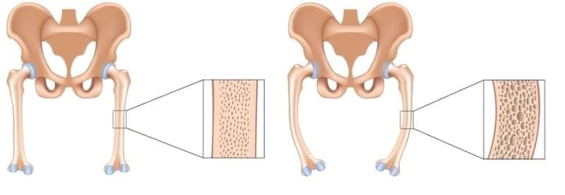 Остеомаляція – симптоми і лікування у дорослих і дітей 1