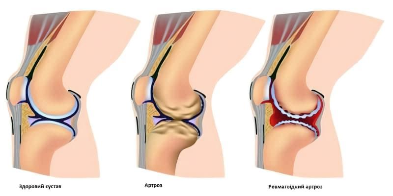 Посттравматичний артроз колінного суглоба 2