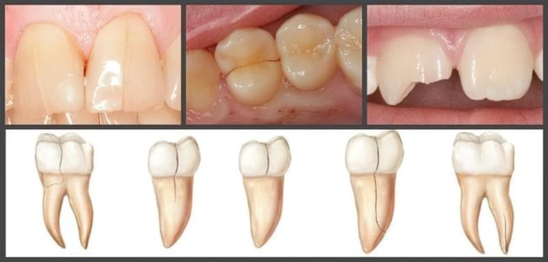 Тріщини на зубах: що з цим робити? 1
