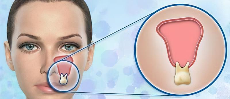 Зубний біль при гаймориті: як лікувати, як зняти 13