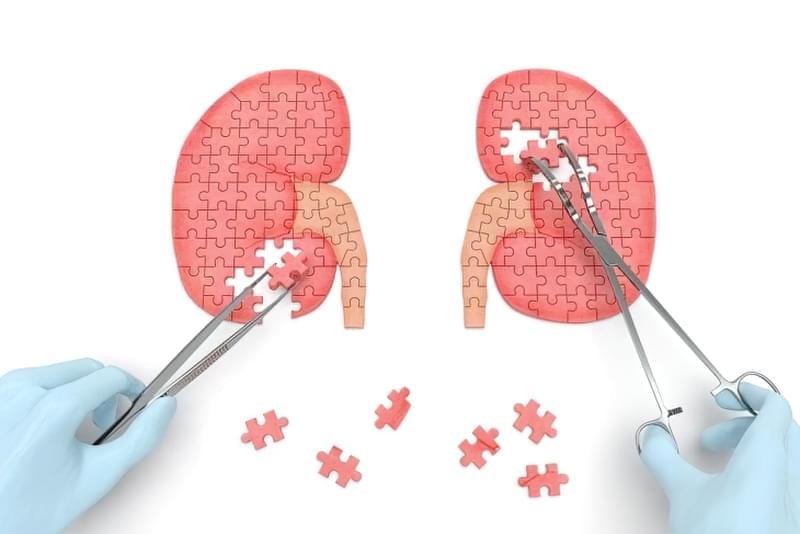 Ліпома нирки: що це за пухлина, принципи лікування 2