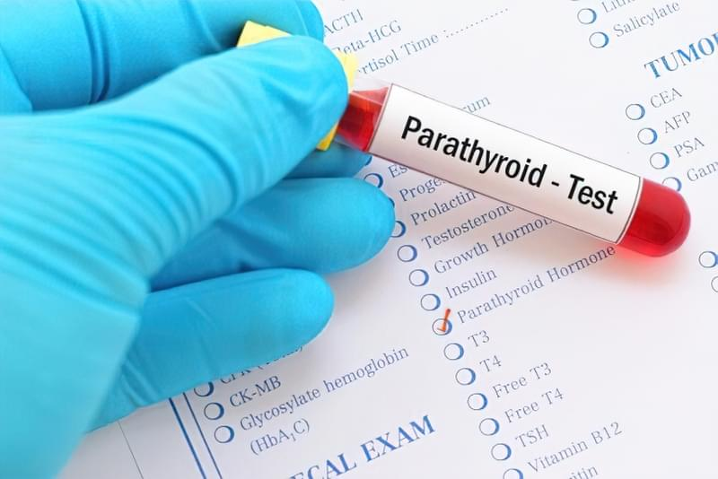Гормони паращитовидних залоз: роль в організмі, норма і патологія 2