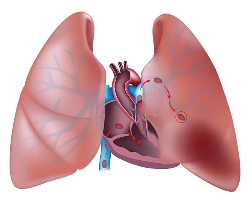 Інфаркт легені: симптоми і лікування 1