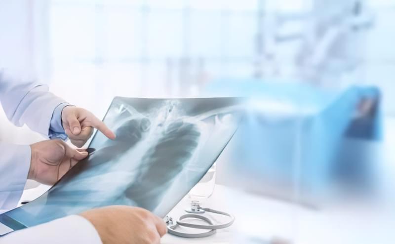Виявити новоутворення в легенях допоможе рентгенографія