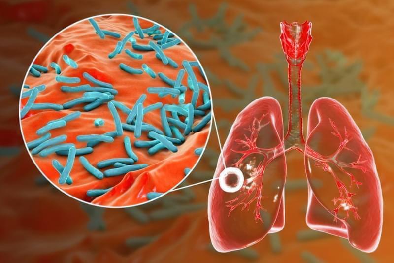 Невідкладна допомога при легеневій кровотечі: симптоми, як зупинити 1
