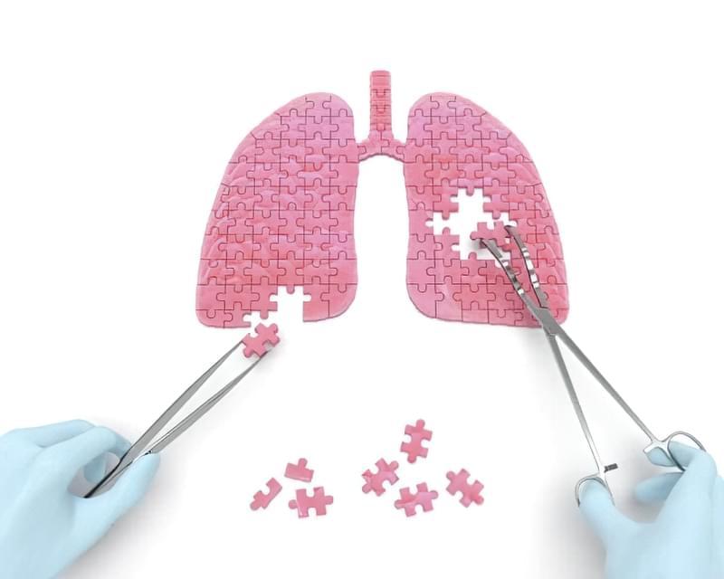 Туберкулома легенів: що це, наслідки 2