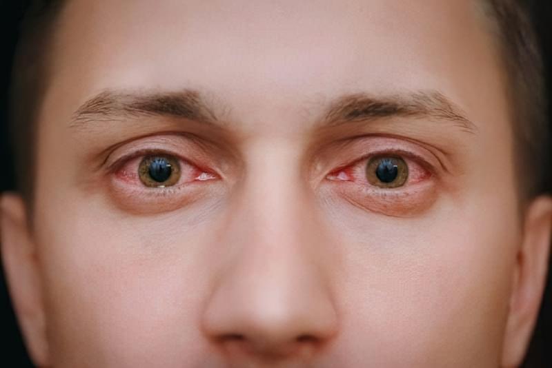 Запалені очі: причини, симптоми, лікування 2