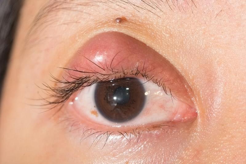 Запалені очі: причини, симптоми, лікування 1