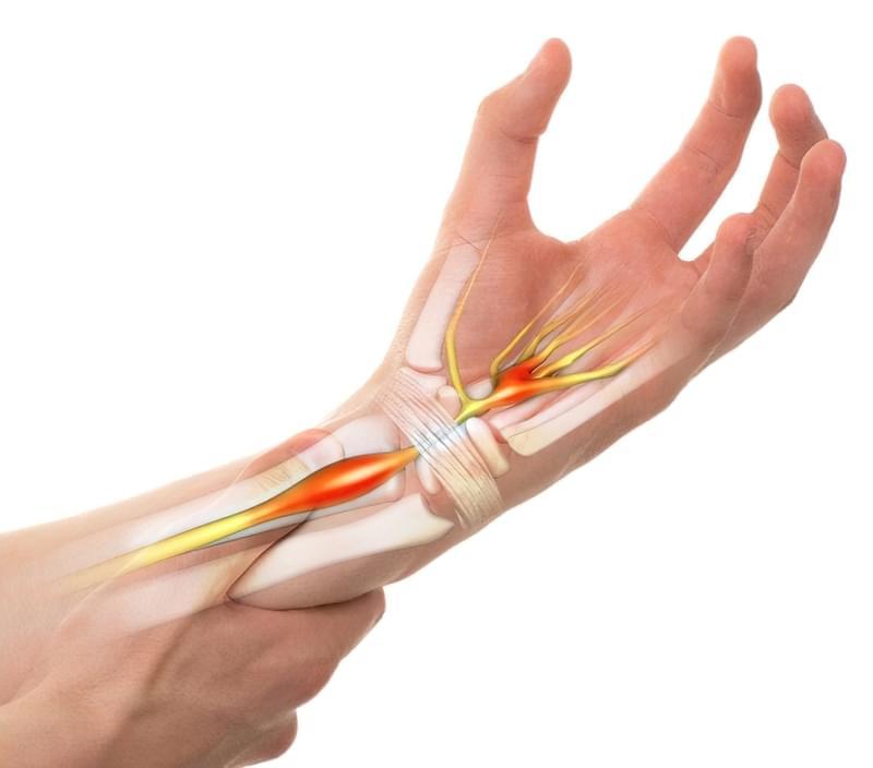 Що робити з рукою при тунельному синдромі 1