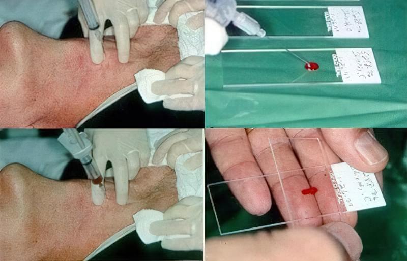 Біопсія для уточнення діагнозу