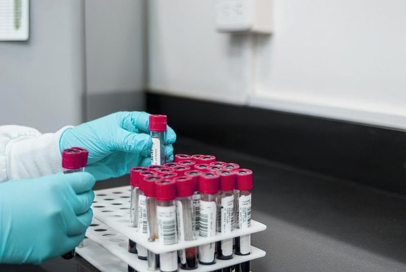 9 міфів про медичні аналізи, в які ви досі вірите 4