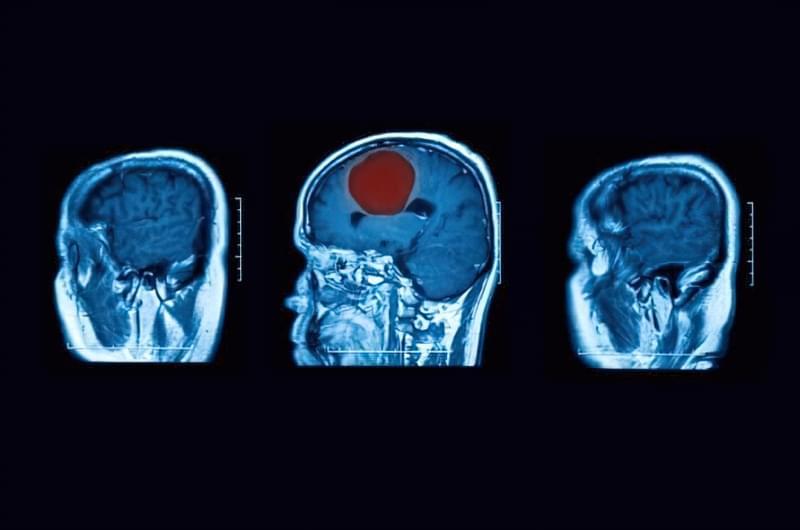 Абсцес мозку: симптоми, лікування 2