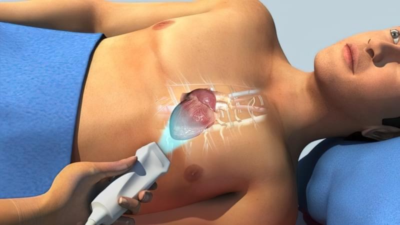 Хронічна ревматична хвороба серця: причини, ознаки, принципи лікування 2