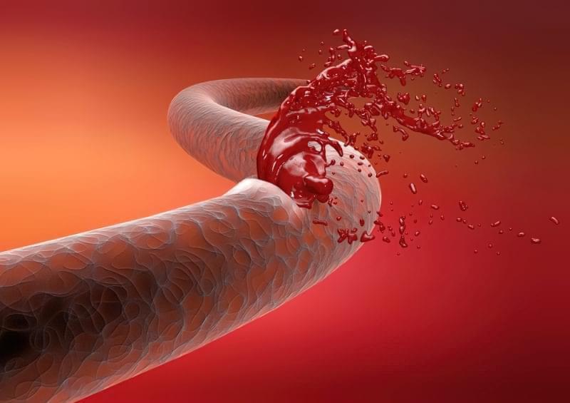 Як зупинити сильну кровотечу? 2