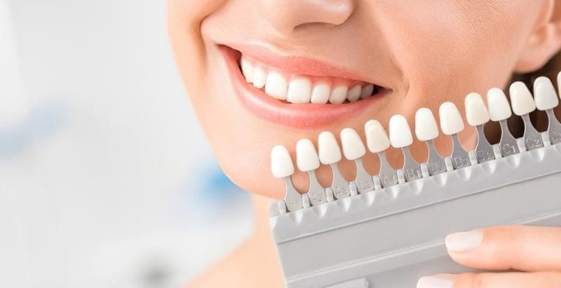 Пожовкли зуби: шукаємо причину 1