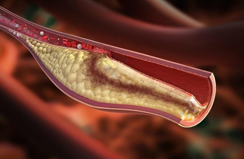 Що таке поганий і хороший холестерин. Чим шкідливий 2