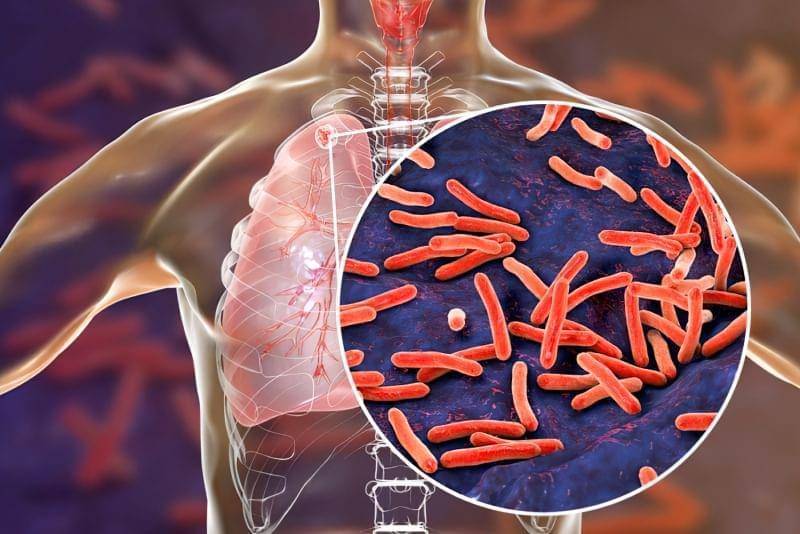 Туберкульоз: як виявити хворобу на ранній стадії 1