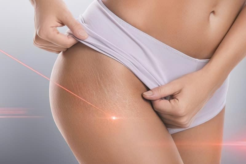 Як позбутися від розтяжок на шкірі 3