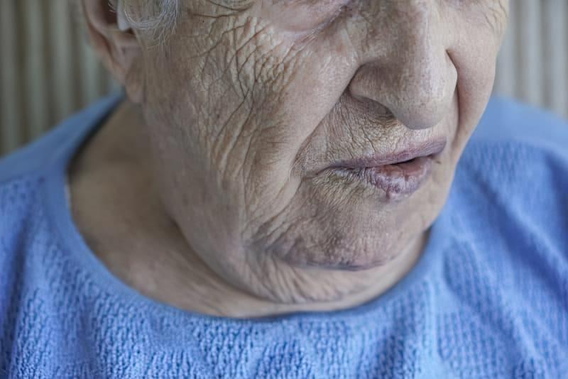 Втратити обличчя: чим небезпечний параліч Белла 2