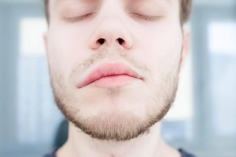 Втратити обличчя: чим небезпечний параліч Белла 1