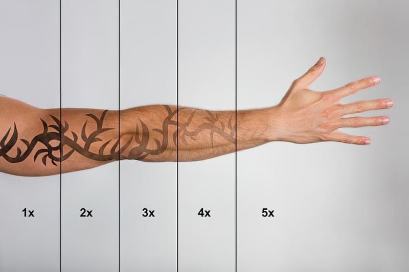 Що потрібно знати про лазерне видалення татуювань 1