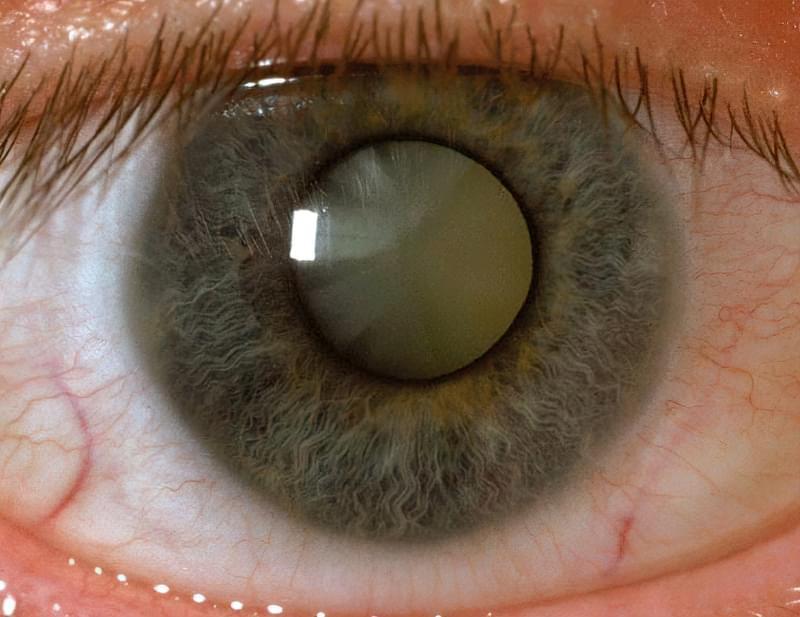 Лікування катаракти: що потрібно знати прямо зараз 1