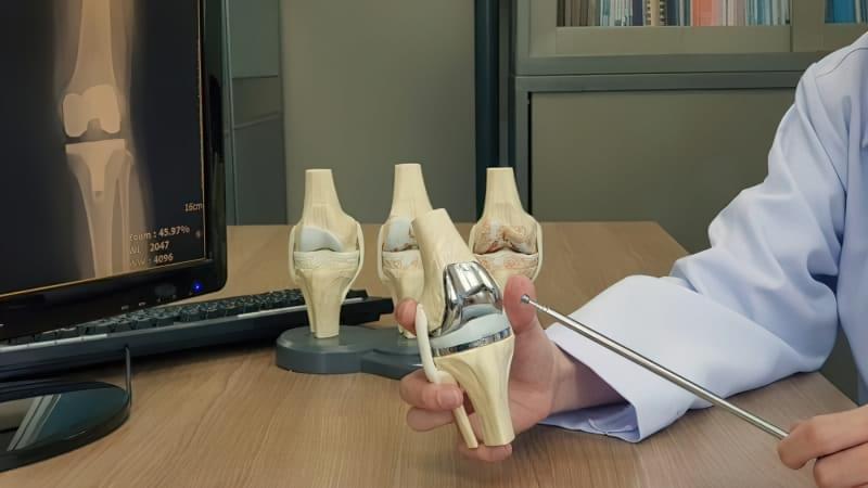 Життя з ендопротезом: кому показана операція, а кому протез? 2