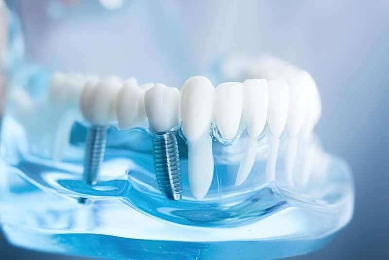 Як правильно доглядати за зубами в літньому віці? 3