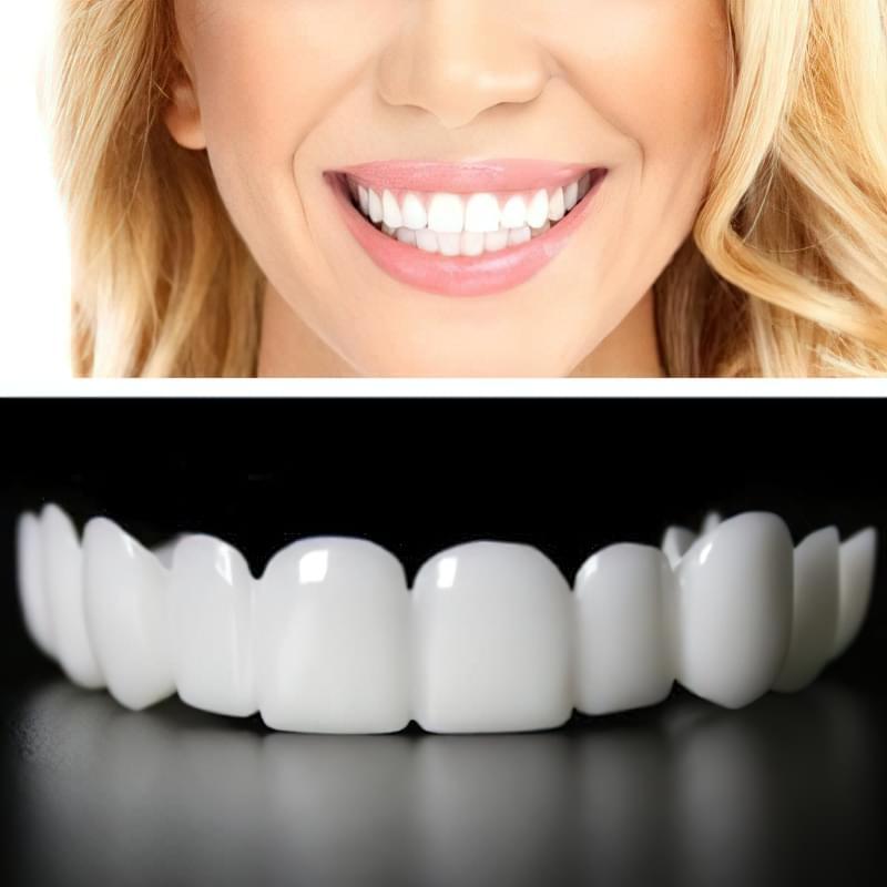 Реставрація зубів: все, що ви хотіли знати про вініри 2
