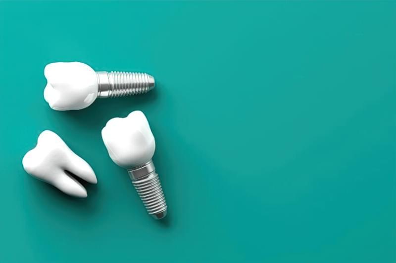 Що робити, якщо видалили зуб: чому не варто відкладати протезування на потім 1