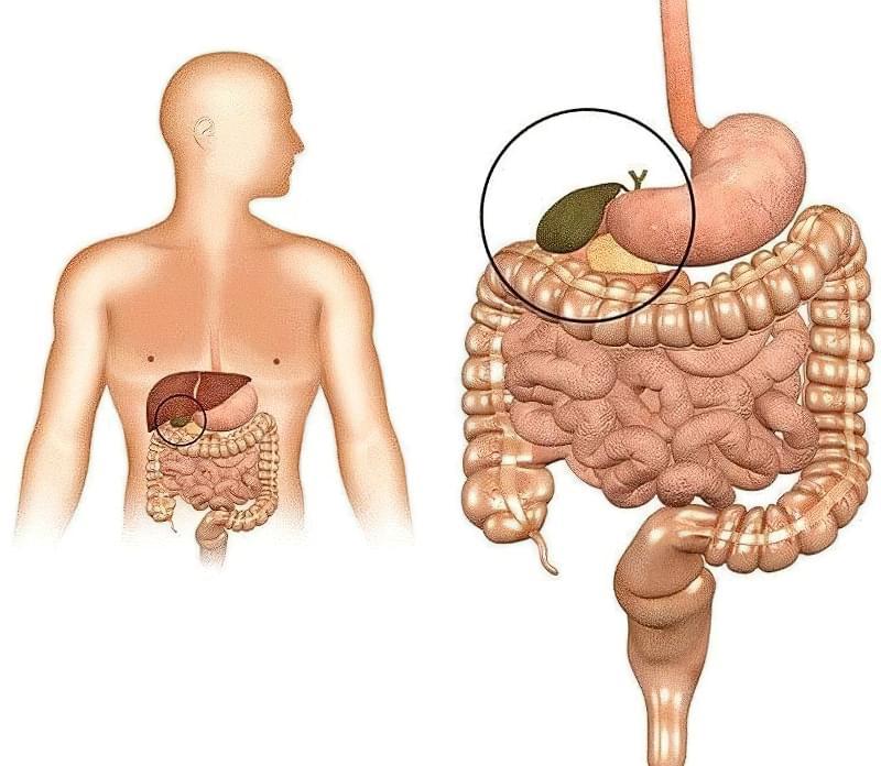 Застій жовчі в жовчному міхурі: симптоми, лікування 1