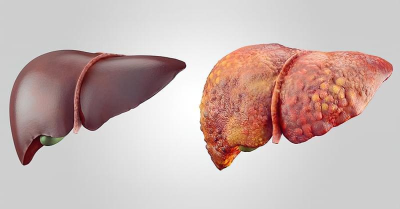 Чим небезпечне ожиріння печінки 1