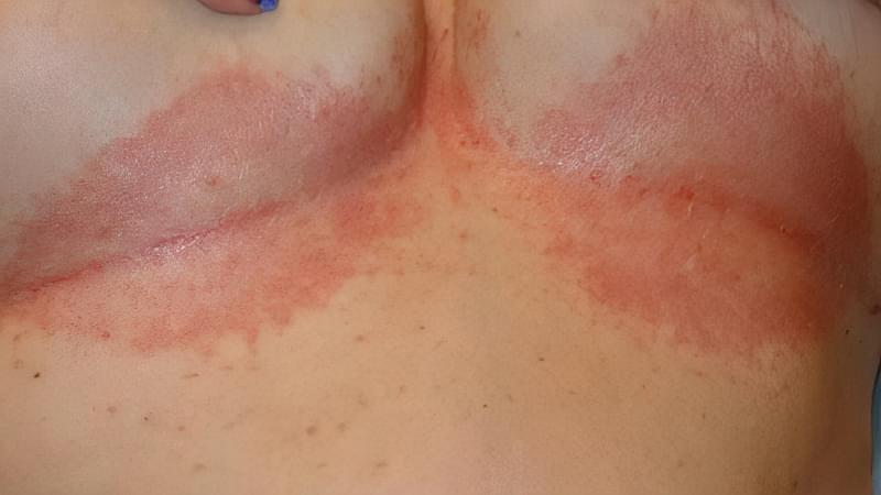 Попрілості під грудьми: чому виникають, як лікувати 1