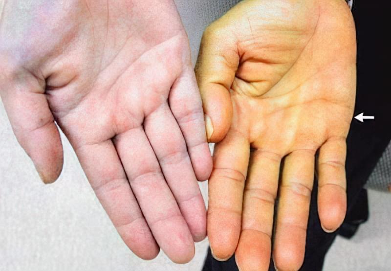 Синдром Жильбера - симптоми, причини, лікування 1