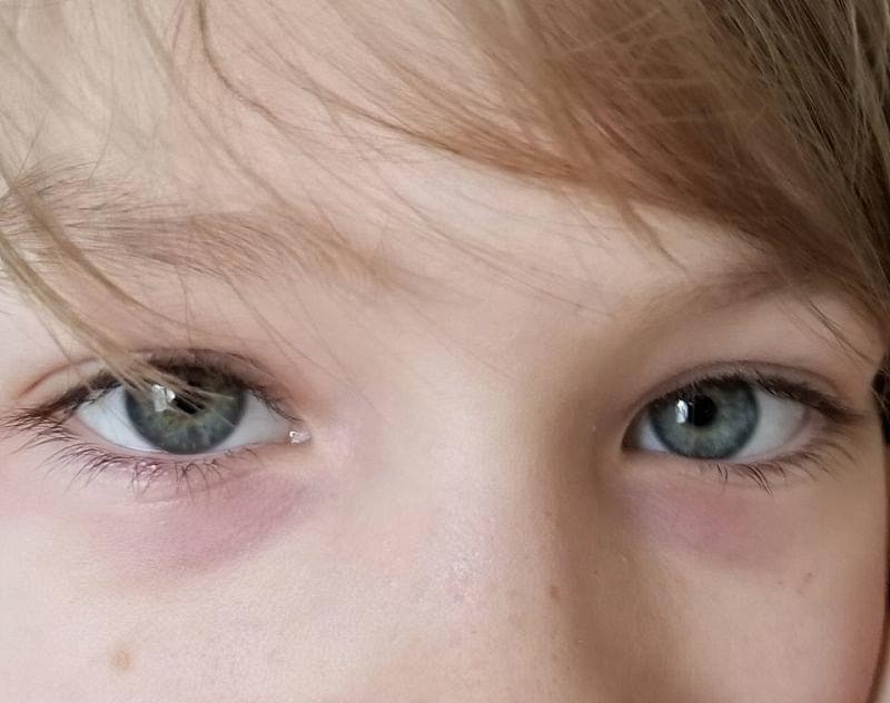 Синці під очима у дитини: причини появи 1