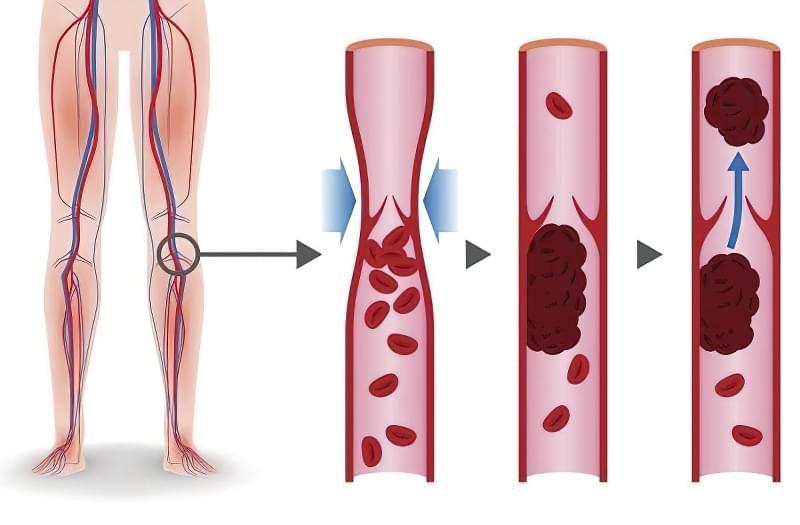 Що таке тромбоз, причини, міфи 1